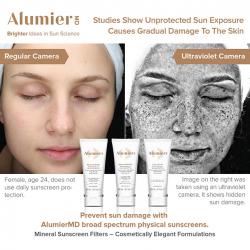 AlumierMD Sun Damage