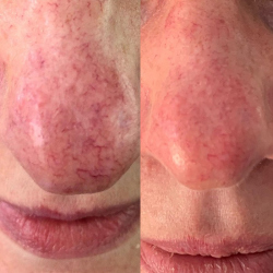 Thread Vein Removal on Nose